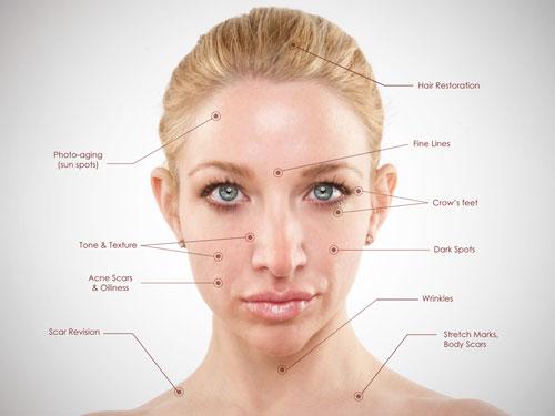 collagen-pin-benefits