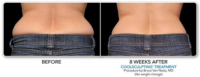 Beautiful U 187 Coolsculpting Treatment Before After 1